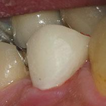 根管治療前に行う治療重要性7 仮歯装着