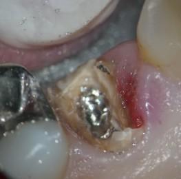 メタルコアの除去 歯を傷つけないために