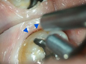 縁下歯石の検出(▲部分)