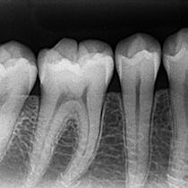 健康な歯と歯周組織のレントゲン写真