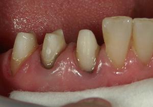 精密歯科治療 新しいファイバーコア装着後