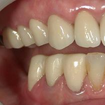 精密歯科治療 仮歯装着後