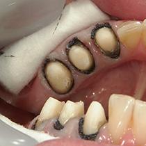 精密歯科治療 型取り前の歯肉圧排