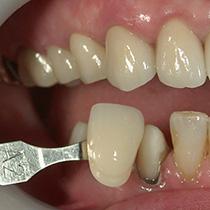 精密歯科治療 セラミッククラウンと歯の色合わせ