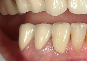 精密歯科治療 歯肉とぴったりあったセラミッククラウン