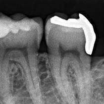 精密歯科治療前の虫歯のレントゲン写真、隙間があります