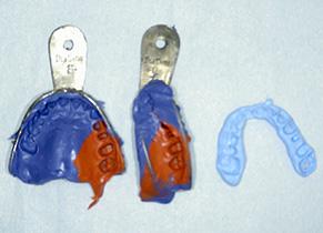 精密歯科治療型取り シリコン印象