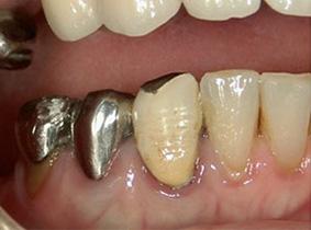 精密歯科治療前。歯肉の炎症がある