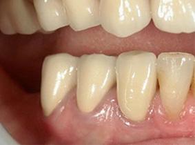 精密歯科治療後