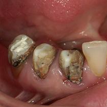 精密歯科治療 クラウンはずす