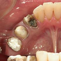 精密歯科治療 クラウンはずす2