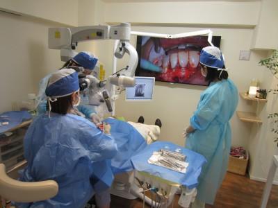 マイクロスコープを使用した歯根端切除術風景2