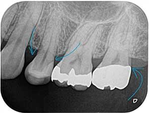 精密歯科治療でスムースなラインに。