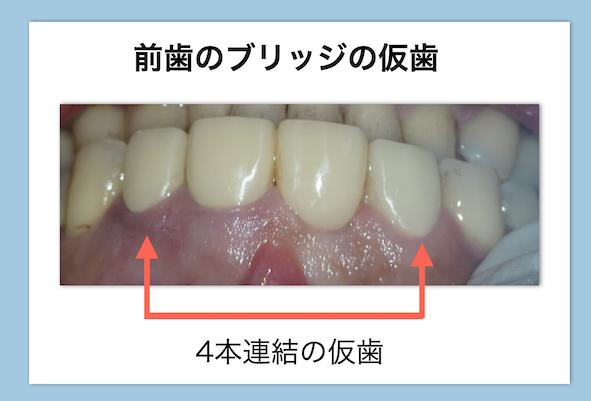 前歯の根管治療中のブリッジ仮歯