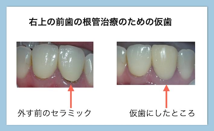根管治療中の前歯の仮歯