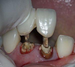 差しこみタイプの前歯の仮歯